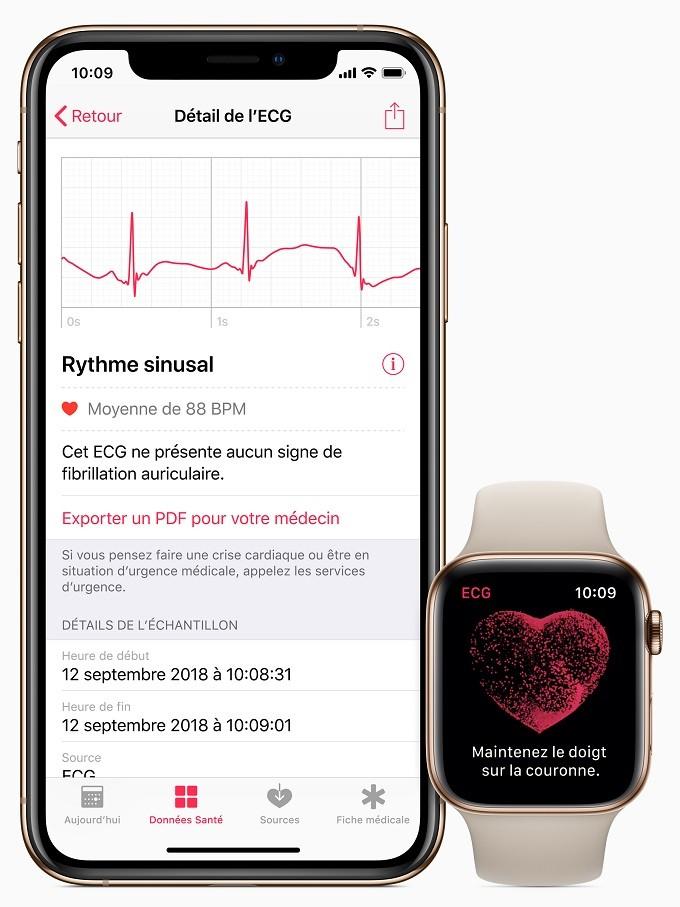 L'électrocardiogramme avec l'Apple Watch Series 4 disponible en France